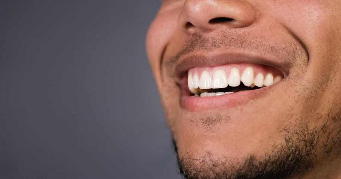 patient smiling after his professional teeth whitening