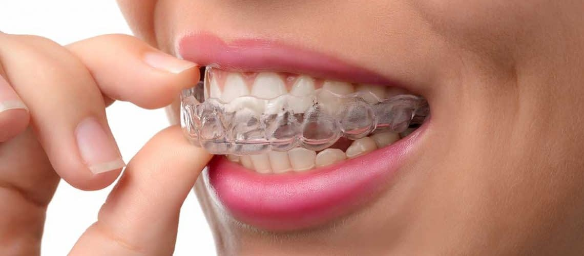 woman wearing Invisalign - Woodbury, MN